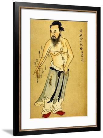 Chinese Acupuncture Charts--Framed Art Print