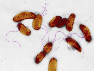 Cholera Bacteria, TEM-Dr. Gopal Murti-Photographic Print
