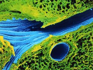 Coloured SEM of Lung Showing Alveoli And Bronchus by Cinti and Gremet