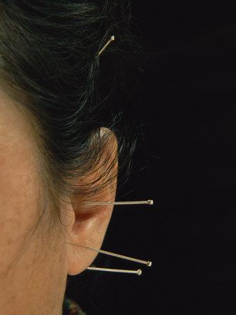 https://imgc.artprintimages.com/img/print/close-view-of-woman-receiving-acupuncture-treatment-around-her-ears_u-l-p3kkcx0.jpg?p=0