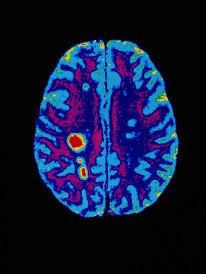 Col. MRI Scan of a Brain with Multiple Sclerosis-Science Photo Library-Photographic Print