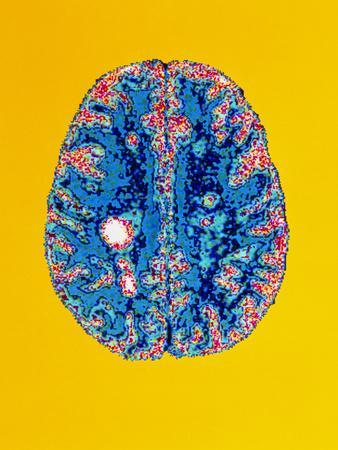https://imgc.artprintimages.com/img/print/col-mri-scan-of-a-brain-with-multiple-sclerosis_u-l-pzjr7l0.jpg?p=0