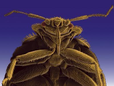 Colorized Microscopic Image of a Bedbug-Darlyne A^ Murawski-Photographic Print
