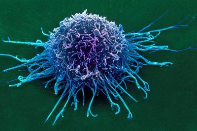 Coloured SEM of a Cancer Cell-Steve Gschmeissner-Photographic Print
