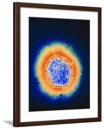 Coloured TEM of a Single Beijing Influenza Virus-NIBSC-Framed Photographic Print
