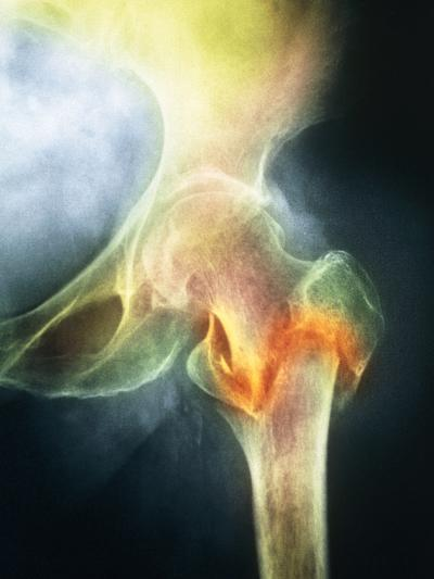 Coloured X-ray of Femur Fracture In Osteoporosis--Photographic Print