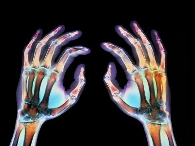 Coloured X-ray of Healthy Human Hands-Science Photo Library-Photographic Print
