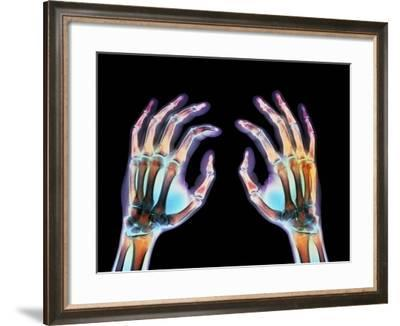 Coloured X-ray of Healthy Human Hands-Science Photo Library-Framed Photographic Print