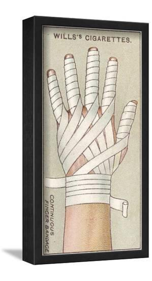 Continuous Finger Bandage, No.48 from the 'First Aid' Series of 'Wills's Cigarettes' Cards, 1913-English School-Framed Art Print