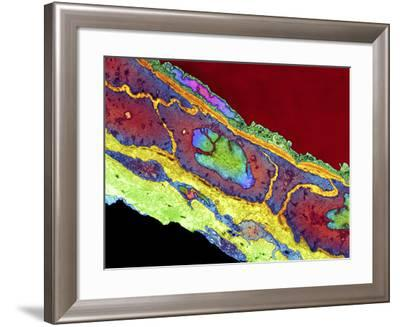 Coronary Artery, TEM-Thomas Deerinck-Framed Photographic Print
