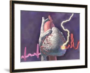 Heart Attack, Graphic Representation of Heart Attack by Craig Zuckerman