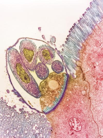 Cryptosporidium Protozoa, TEM--Photographic Print