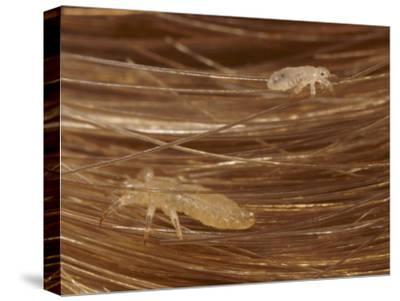Head Lice Crawling Through Hair