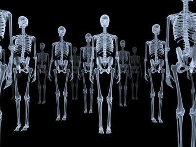 Skeletons, X-ray Artwork