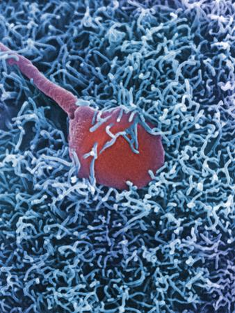 A Human Sperm Fertilizing an Egg, SEM X12,000 by David Phillips