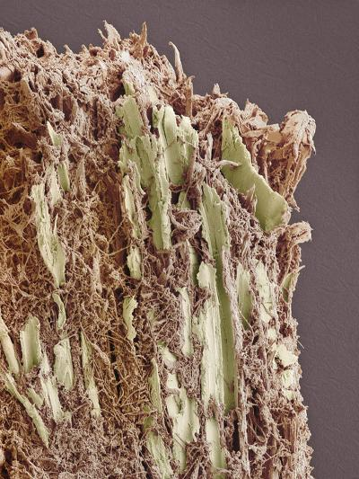 Dental Plaque, SEM-Steve Gschmeissner-Photographic Print