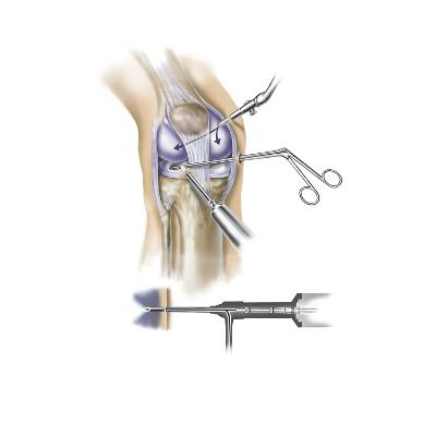 Detail of Human Knee Showing Insertion of Arthroscopic Instruments--Art Print