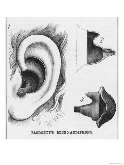 Diagrams to Show Blodgett's Micro-Audiphone Hearing Aid and How It is Inserted into the Ear--Giclee Print