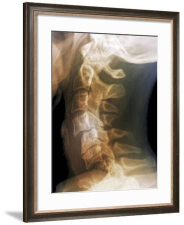 Dislocated Neck Bones, X-ray-ZEPHYR-Framed Photographic Print