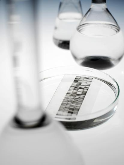 DNA Autoradiogram-Tek Image-Photographic Print