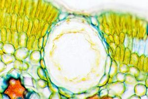 Heather Leaf Stomata, Light Micrograph by Dr. Keith Wheeler