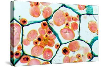 Potato Starch Grains, Light Micrograph