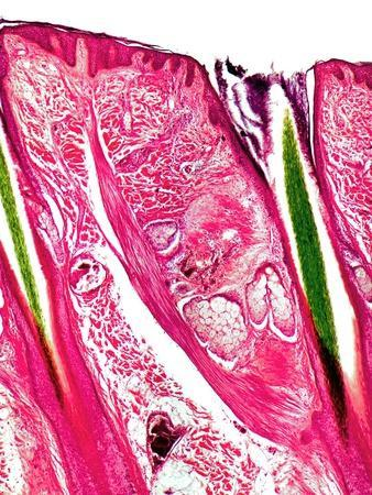Skin Section, Light Micrograph