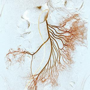 Abdominal Blood Vessels, X-ray by Du Cane Medical