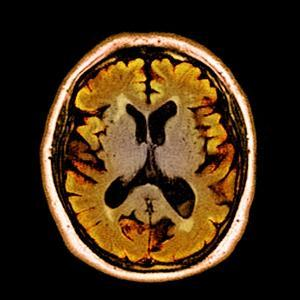 Alcoholic Dementia, MRI Scan by Du Cane Medical