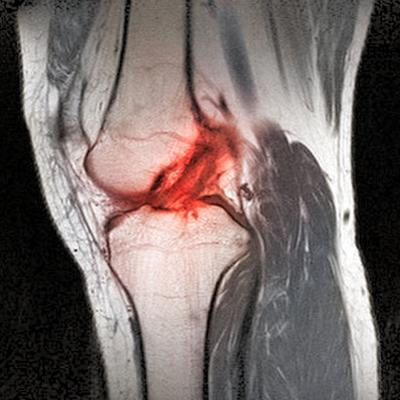 Anterior Cruciate Ligament Tear, CT Scan by Du Cane Medical