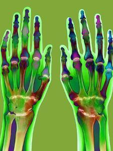 Arthritic Hands, X-ray by Du Cane Medical