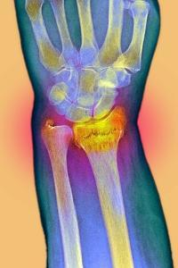 Broken Wrist, X-ray by Du Cane Medical