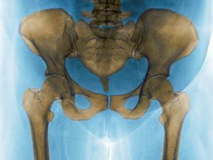 Female Pelvis, X-ray by Du Cane Medical