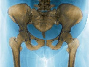Female Pelvis, X-ray by Du Cane Medical