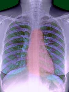 Heart, Chest X-ray by Du Cane Medical