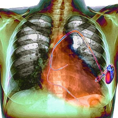 Heart Pacemaker, X-ray by Du Cane Medical