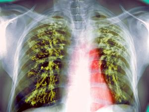 Lung Scarring From Tuberculosis, X-ray by Du Cane Medical