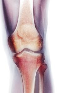 Normal Knee, X-ray by Du Cane Medical