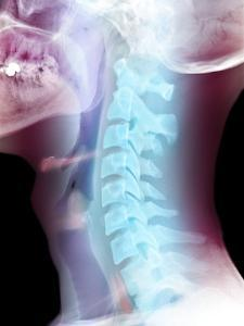 Normal Neck, X-ray by Du Cane Medical