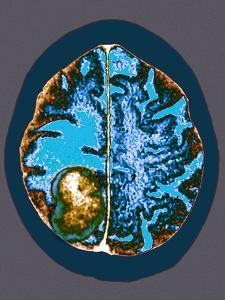Secondary Brain Cancer, CT Scan by Du Cane Medical