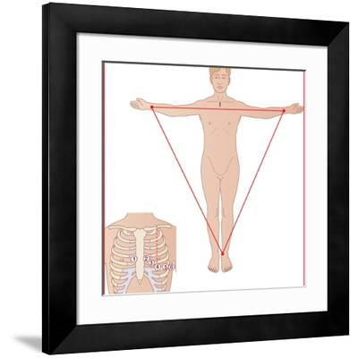 ECG Electrode Placement, Artwork-Peter Gardiner-Framed Photographic Print