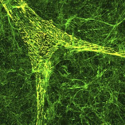 Extracellular Matrix Is the Substance or Matter of a Tissue Which Is Not a Cell by Edna Cukierman