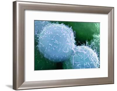 Embryonic Stem Cells, SEM-Science Photo Library-Framed Photographic Print