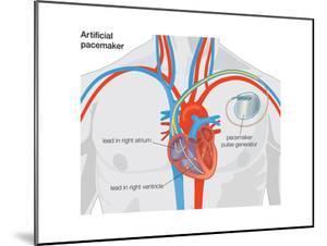 Artificial Pacemaker by Encyclopaedia Britannica