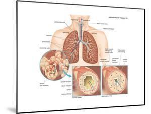 Asthma Attack by Encyclopaedia Britannica