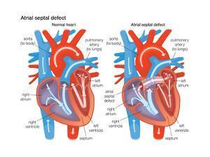 Atrial Septal Defect by Encyclopaedia Britannica