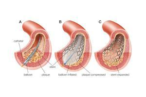 Balloon Angioplasty and Stent Insertion. Cardiovascular System, Health and Disease by Encyclopaedia Britannica