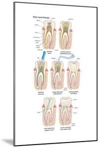 Dental Implant. Dentistry, Endodontics, Teeth, Tooth Damage, Oral Health, Health and Disease by Encyclopaedia Britannica