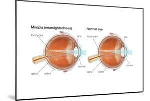 Farsighted Eye (Hyperopia). Convex Lens, Ophthalmology, Health and Disease by Encyclopaedia Britannica