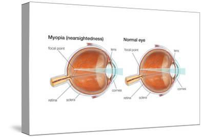 Farsighted Eye (Hyperopia). Convex Lens, Ophthalmology, Health and Disease